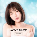 Acne Back